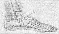 Рис. 9. Схема операции внесуставного артродеза таранно-пяточного сустава по Грайсу: два костных трансплантата (1) соединяют таранную (2) и пяточную (3) кости.