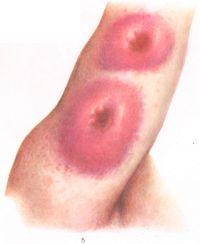 Рис. 5. Резко положительная кожная реакция на кандидозный антиген на коже плеча.