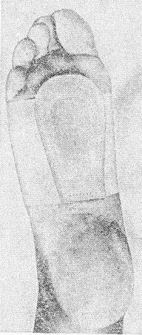 Рис. 4. Стопа в манжете с вкладышем для поддержания поперечного свода.