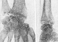 Рис. 1. Рентгенограммы кистевого сустава (слева в прямой проекции, справа — в боковой) при болезни Кинбека в стадии фрагментации: стрелками указана пораженная полулунная кость.