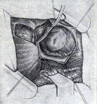 Рис. 6. Операция при диффузной аневризме левого желудочка: выкраивание лоскута из диафрагмы