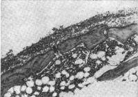 Рис. 3. Воспалительные инфильтраты в грануляционной ткани паннуса при артрите (верхняя часть рисунка). Окраска гематоксилин-эозином; X 70.