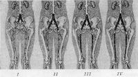Рис. 2. Схематическое изображение типов поражения брюшной аорты и артерий нижних конечностей, приводящих к синдрому Лериша: I тип — поражение бифуркации аорты и общих подвздошных артерий; II тип — поражение аорты, общих и наружных подвздошных артерий; III тип — поражение аорты, общих, наружных подвздошных и поверхностных бедренных артерий; IV тип — поражение аорты, общих и наружных подвздошных, поверхностных бедренных артерий и артерий голени; черным цветом указаны места окклюзии или стеноза артерий.