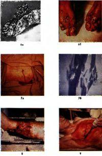 Раны, ранения