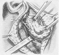 Рис. 7. Схема этапа операции паротидэктомии с сохранением ветвей лицевого нерва (мобилизованы задний край и нижний полюс железы, выделен внутренний край грудино-ключично-сосцевидной мышцы, обнажен основной ствол лицевого нерва): 1 — околоушная железа; 2 — заднее брюшко двубрюшной мышцы; 3 — грудино-ключично-сосцевидная мышца; 4 — ствол лицевого нерва.