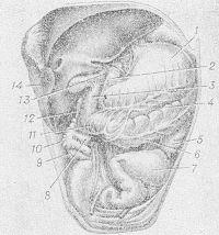 Рис. 11. Схематическое изображение положения толстой кишки у ребенка 2 лет (петли тонкой кишки и большая часть большого сальника удалены): 1 — желудок; 2 — двенадцатиперстная кишка; 3 — правый изгиб ободочной кишки; 4 — желудочно-ободочная связка; 5 — нисходящая ободочная кишка; 6 — поперечная ободочная кишка; 7 — сигмовидная ободочная кишка; 8 — подвздошная кишка; 9 — червеобразный отросток; 10 — слепая кишка; 11 —остатки большого сальника; 12 — восходящая ободочная кишка; 13 — печеночно-двенадцатиперстная связка; 14 — правая доля печени.