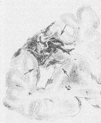 Рис. 17. Фронтальный срез левого полушария головного мозга: многокамерная киста (указана стрелками), возникшая в ' результате организации инфаркта.