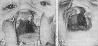Рис. 4. Ротовая полость ребенка с расщелиной неба: а — сквозная двусторонняя расщелина, проходящая через губу, альвеолярный отросток верхней челюсти и небо; б — сквозная левосторонняя: расщелина.