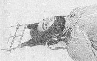 Рис. 1. Больной с травмой шейного отдела позвоночника, подготовленный к транспортировке: наложена шина для иммобилизации шейного отдела позвоночника.