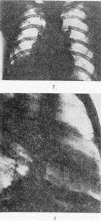 Рис. 65. Рентгенограммы грудной клетки больного с центральным раком легкого в прямой (1) и боковой (2) проекциях: затемнение нижнего отдела правого легочного поля, обусловленное прикорневым раком с ателектазом средней и нижней долей.