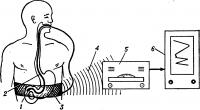 Рис. 6. Схема радиотелеметрического исследования функций двенадцатиперстной кишки: радиокапсула (1) в двенадцатиперстной кишке фиксирована на тонком зонде (2); сигналы от радиокапсулы принимает гибкая антенна, вмонтированная в пояс (3), и передает импульсы (4) через приемно-анализирующее устройство (5) на самописец регистрирующего устройства (6).