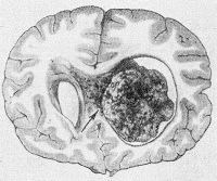Рис. 6. Фронтальный срез головного мозга: хориоидпапиллома бокового желудочка (указана стрелкой), обтурирующая межжелудочковое отверстие.