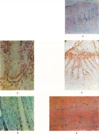 Рис. 2—6. Микропрепараты тонкой кишки после устранения кишечной непроходимости. Рис. 2. Регенерация эпителия кишечных крипт (1) под слоем некроза (2); окраска по Паппенгейму; х 70. Рис. 3. Сохранение активности неспецифической щелочной фосфомоноэстеразы в базальной мембране 1 (окрашена в красный цвет кишечной крипты (2); реакция по Гомори, докраска кармином Гренахера; X 200. Рис. 4. Возобновление секреции плотной части (1) кишечного сока; 2 — кишечные крипты; реакция по Гомори, докраска кармином Гренахера; X 70. Рис. 5. Начинающаяся регенерация эпителия (указан стрелкой) кишечных ворсинок; ШИК-реакция по Мак-Манусу; X 70. Рис. 6. Микропрепарат тонкой кишки при непроходимости кишечника: кровоизлияния (1) в мышечной оболочке между некротизированными мышечными волокнами (2); ШИК-реакция; х 70.