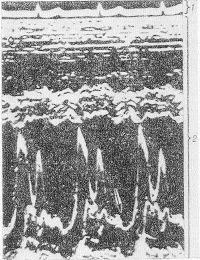 Рис. 10. Электрокардиограмма (1) и эхокардиограмма (2) больного с пролабированием обеих створок митрального клапана: стрелка указывает на аномальное движение створок в телесистолической фазе.