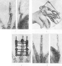 Рис. 7. Вправление застарелого вывиха в межфаланговом суставе при помощи аппарата Волкова — Оганесяна: 1 — рентгенограммы в прямой и боковой проекциях до лечения; 2 — наложен аппарат; з — рентгенограмма в прямой проекции после вправления; 4 — рентгенограммы в прямой и боковой проекциях по окончании лечения.