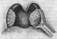 Рис. 6. Схематическое изображение первого этапа операции тонзиллотомии: гиперплазированный участок левой небной миндалины захвачен кольцом тонзиллотома.
