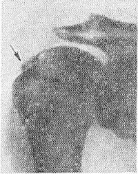 Рис. 9. Прямая рентгенограмма плечевого сустава при известковом бурсите: у верхненаружного контура головки плечевой кости видна тень кальцификата (указана стрелкой).