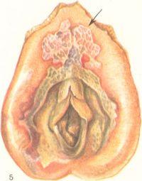Рис. 5. Дифтерия наружных половых органов девочки (припухлость больших и малых половых губ, грязно-белые налеты на слизистой оболочке, изъязвления на коже — указаны стрелкой).
