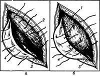 Рис. 9. Схема пластики пахового канала по Спасокукоцкому: а — проведение швов через апоневроз, мышцы и паховую связку над семенным канатиком; б — удвоение апоневроза наружной косой мышцы; 1 — апоневроз наружной косой мышцы; 2 — внутренняя косая мышца; 3 — семенной канатик; 4 — паховая связка.