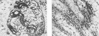 Рис. 2. Микропрепараты почки при острой почечной недостаточности (отравление этиленгликолем): а — в клубочковых кровеносных капиллярах видны пристеночные тромбы (указаны стрелками); окраска по Маллори; х 110; б— баллонная дистрофия эпителия канальцев; окраска гематоксилин-эозином; х 100.
