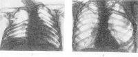 Рис. 10. Рентгенограммы грудных клеток с аномалиями ребер: 1 — отсутствие III-V ребер справа (указано стрелкой); 2 — гигантское VI ребро слева (указано стрелкой).