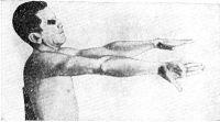 Рис. 18. Гиперметрия справа у больного с поражением мозжечка: при повороте вниз ладоней вытянутых вперед рук происходит избыточная ротация правой кисти на стороне поражения полушария мозжечка.