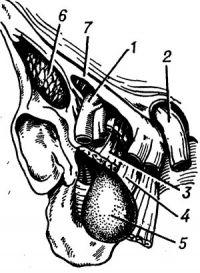 Рис. 24. Схема расположения позадигребешковой запирательной грыжи: 1 — нижняя надчревная артерия; 2 — семенной канатик; 3 — гребешковая мышца; 4 — длинная приводящая мышца; 5 — грыжевой мешок; 6 — подвздошно-поясничная мышца; 7 — паховая связка.
