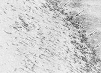 Рис. 5. Микропрепарат миокарда: видны макрофаги при инфаркте после 10 —12 суток (указаны стрелками); окраска гематоксилин-эозином; X 150.