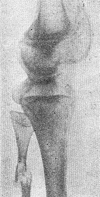 Рис. 1. Рентгенограмма нижней трети бедра и верхней трети голени больного гемофилией. Патологический перелом малоберцовой кости в области кисты.