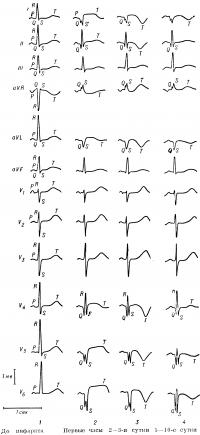 Рис. 12. Динамика изменений ЭКГ при трансмуральном верхушечно-боковом инфаркте миокарда: 1 — нормальная ЭКГ (до развития инфаркта); 2 — наличие зубца QS в отведениях I, aVL и V5 V6, патологический зубец Q в отведении V4; сегмент S—T в отведениях I, II, V4—V6 приподнят, зубец T в отведениях I, V4—V6 с отрицательной фазой; 3 — формирование «коронарного» зубца T в отведениях I, II, aVL, V6; 4 — сегмент S — T приблизился к изоэлектрической линии, зубец T в отведениях I, V5_Vв стал менее глубоким; зубец T в отведении V4 стал положительным; вольтаж 1 тв; отметчик времени 1 сек.