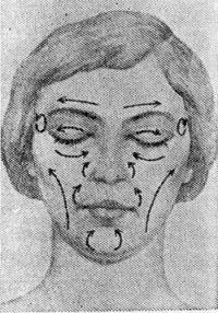Рис. 5. Схематическое изображение направления движений пальцев при массаже лица больного с невритом лицевого нерва.