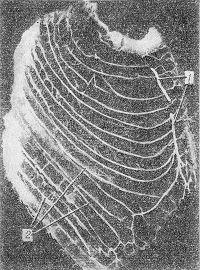 Рис. 4. Инъецированные артерии грудной клетки (справа). Видна система внутренних грудных (1) и задних межреберных (2) артерий (по Иванову).