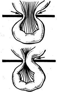 Рис. 1. Схема механизма ущемления грыжи: верхний рисунок — эластическое ущемление (указано стрелками) за счет спазма брюшных мышц с последующим сдавлением внутренностей; нижний рисунок — каловое ущемление вследствие переполнения каловыми массами приводящей петли кишки (указано стрелкой) и сдавлением отводящей петли.