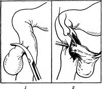 Рис. 9. Схема удаления дивертикула двенадцатиперстной кишки методом инвагинации: 1 — мобилизация выделенного дивертикула; 2 — прошивание ножки инвагинированного дивертикула.