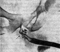 Рис. 6. Уретрограмма больного раком перепончатой и губчатой частей мочеиспускательного канала: неровность контуров и дефекты наполнения его указаны стрелкой.