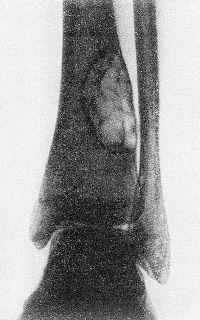 Рис. 3. Рентгенограмма дистальной трети голени больного с очаговой формой фиброзной остеодисплазии большеберцовой кости (прямая проекция): четно отграниченный крупный ячеистый дефект костной ткани с истонченным над ним корковым слоем.
