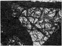 Рис. 2. Грубое утолщение паутинной оболочки с образованием фиброзных тяжей различной величины.