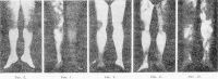 Рис. 6—10. Термограммы нижних конечностей человека (даны в зеркальном изображении и схематизированы): рис. 6 — здорового человека; кровообращение не нарушено (равномерный светлый тон); рис. 7 — больного с острым тромбозом правой подвздошной артерии (правая нижняя конечность холодная и на термограмме окрашена в темный цвет); рис. 8— больного с облитерирующим эндартериитом; нарушение кровоснабжения (темные пятна) в нижней трети левой голени и стопе — указано стрелкой; рис. 9— больного с облитерирующим атеросклерозом правой подвздошной и бедренной артерий; нарушение кровоснабжения (темные пятна) тканей левого бедра начинается на уровне бедренной артерии — указано стрелкой; рис. 10— больного с болезнью Бюргера (на более темном фоне отмечаются многочисленные светлые пятна, свидетельствующие о наличии воспалительного процесса на фоне ишемизированных конечностей).