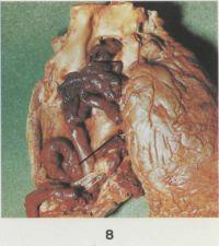 Рис. 8. Макропрепарат сердца при тромбоэмболии правого желудочка и легочного ствола (правый желудочек и легочный ствол вскрыты; дано с уменьшением): 1 — начальная часть тромбоэмбола, располагающаяся в легочном стволе; 2 —конечная часть тромбоэмбола, располагающаяся в полости правого желудочка.