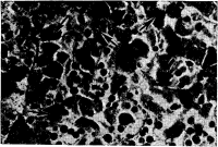 Рис. 2. Некроз и дискомплексация печеночных клеток (показаны стрелками) при генерализованной ветряной оспе у ребенка с острым лейкозом.