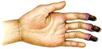 Рис. 3. Ангиотрофоневроз. Побледнение, акроцианоз и гангрена пальцев (болезнь Рейно)
