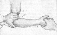 Рис. 11. Схематическое изображение вправления заднего вывиха костей предплечья: при вправлении костей плеча и предплечья больного они смещаются в противоположных направлениях (показано стрелками); большие пальцы вправляющего надавливают на локтевой отросток, при этом помощник тянет за кисть