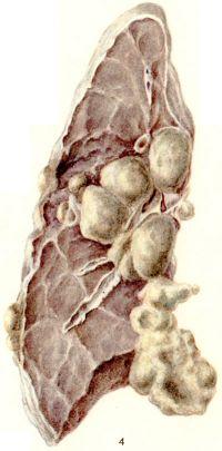 Рис. 4. Макропрепарат легкого с увеличенными прикорневыми лимфатическими узлами при лимфогранулематозе: прорастание опухолевой ткани на поверхность висцеральной плевры (часть легочной ткани удалена).