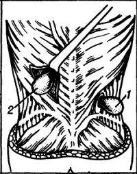 Рис. 23. Схема расположения поясничных грыж: 1 — нижняя поясничная; 2 — верхняя поясничная.