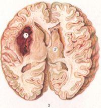 Рис. 2. Обширный очаг кровоизлияния (1) в левых подкорковых узлах мозга; удлиненной формы киста (2) после кровоизлияния в правых подкорковых узлах.