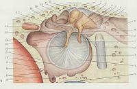 Рис. 2. Латеральная (перепончатая) стенка правой барабанной полости, слуховые косточки, их связки и карманы барабанной полости: 1 — крыша барабанной полости; 2 — верхняя связка наковальни; 3 — тело наковальни; 4 — задняя молоточковая складка; 5 — надбарабанное углубление; 6 — короткая ножка наковальни; 7 — задняя связка наковальни; 8 — сосцевидная пещера; 9 — заднее углубление барабанной перепонки; 10 — длинная ножка наковальнй; 11— чечевицеобразный отросток; 12 — лицевой ,нерв (отсечен); 13 — сосцевидная стенка; 14 — барабанная перепонка (натянутая часть); 15 — верхняя луковица внутренней яремной вены; 16 — внутренняя сонная артерия; 17 — барабанные ячейки; 18 — сонно-барабанная артерия (отсечена); 19 — сонно-барабанный каналец; 20 — фиброзно-хрящевое кольцо; 21 — сонная стенка; 22 — рукоятка молоточка; 23 — переднее углубление барабанной перепонки; 24 — костная часть евстахиевой трубы; 25 — место прикрепления мышцы, напрягающей барабанную перепонку; 26 — мышца, напрягающая барабанную перепонку (отсечена); 27 — передняя молоточковая складка; .28 — барабанная струна; 29 — шейка молоточка; 30 — наковальнемолоточковый сустав; 31 — головка молоточка; 32 — верхняя связка молоточка