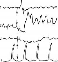Рис. 15. Кимограмма, иллюстрирующая влияние глотания (момент глотания указан стрелкой) на моторику пищевода (1), пищеводно-желудочного перехода (2), дна (3) и пилорической части (4) желудка.