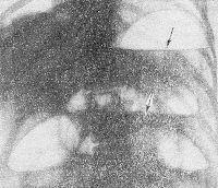 Рис. 7. Прямая рентгенограмма брюшной полости при тонкокишечной непроходимости: стрелками указаны горизонтальные уровни жидкости с газовыми пузырями над ними — чаши Клойбера.