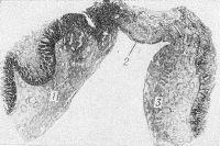 Рис. 3. Гистотопограмма тонкой кишки при странгуляционной непроходимости (продольный разрез): 1 — приводящий отдел кишки; некроз (2) стенки кишки в зоне борозды ущемления; 3 — отводящий отдел кишки; окраска гематоксилин-эозином; X 50.