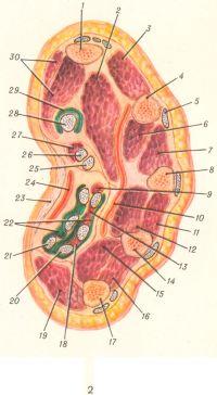 Рис. 2. Поперечный разрез правой кисти через пясть: 1 — первая пястная кость; 2 — мышца, приводящая большой палец; 3 — первая тыльная межкостная мышца; 4 — вторая пястная кость; 5 — сухожилие разгибателя пальцев; 6 — ладонная межкостная мышца; 7 — вторая тыльная межкостная мышца; 8 — третья пястная кость; 9 — червеобразная мышца; 10 — глубокая ладонная дуга; 11 — третья тыльная межкостная мышца; 12 — вторая ладонная межкостная мышца; 13 — червеобразная мышца; 14 — четвертая пястная кость; 15 — ладонная межкостная мышца; 16 — четвертая тыльная межкостная мышца; 17 — пятая пястная кость; 18 — червеобразная мышца; 19 — мышцы возвышения мизинца; 20 — сухожилия глубокого сгибателя пальцев; 21 — сухожилия поверхностного сгибателя пальцев; 22 — общее синовиальное влагалище сгибателей пальцев; 23 — ладонный апоневроз; 24 — поверхностная ладонная дуга; 25 — сухожилие поверхностного сгибателя пальцев; 26 — сухожилие глубокого сгибателя пальцев; 27 — червеобразная мышца; 28 — сухожилие длинного сгибателя большого пальца; 29 — влагалище сухожилий длинного сгибателя большого пальца; 30 — мышцы возвышения большого пальца. Зеленым обозначены синовиальные влагалища сухожилий и линии суставов между костями запястья.